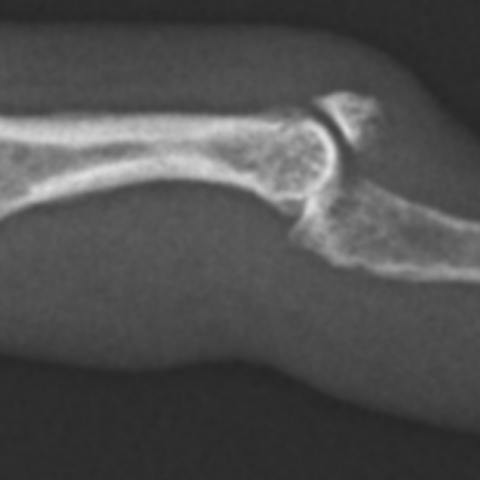 Mallet Fracture